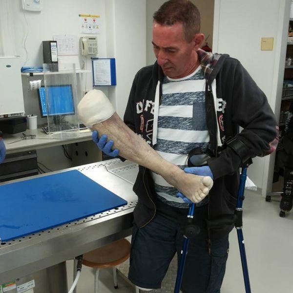 Sie glauben nie, was dieser Mann nach der OP mit seinem Bein vorhatte (Foto)