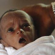 Unicef: Eine Million Kinder sterben am Tag der Geburt (Foto)