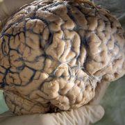 Analyse: Ein Raster im Kopf zur Vermessung der Welt (Foto)