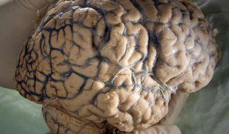 Oberhansley aß Gehirn, Herz und Lunge der Frau. (Foto)