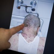 Krätze-Alarm! Patienten und Pfleger erkrankt (Foto)