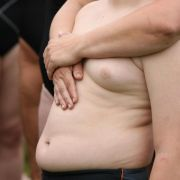 Extremes Übergewicht: Forscher entdecken neue Mutation (Foto)