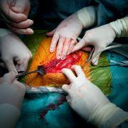 Patient heiratet Lebensretterin nach der Organspende (Foto)