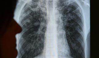 Tuberkulose-Erkrankungen gehen in Europa leicht zurück (Foto)