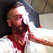 Dominik zeigt Zivilcourage - und endet blutüberströmt (Foto)