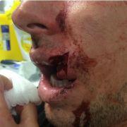 Rugby-Star Luke Dorn riskiert 'ne dicke Lippe (Foto)