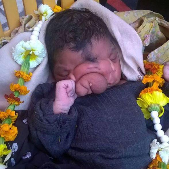 Baby mit Elefantenrüssel geboren (Foto)