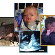 Baby-Schicksale, die für Gänsehaut sorgten (Foto)