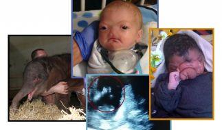 Diese Baby-Schicksale bewegten uns in dieser Woche. (Foto)