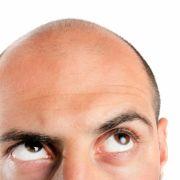 Studie sagt: Haare ausreißen hilft gegen Glatze (Foto)