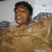 14-Jähriger von zwei Muslimen angezündet (Foto)