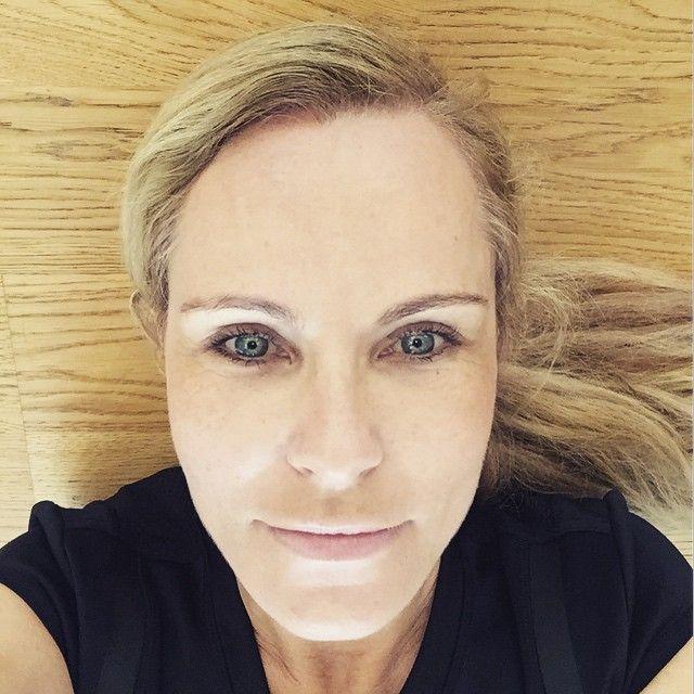 Lag sie unterm Messer? Botox-Vorwurf gegen Katja Burkard (Foto)