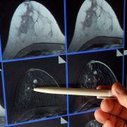 Bitte nicht ignorieren! 5 Anzeichen für Krebs (Foto)