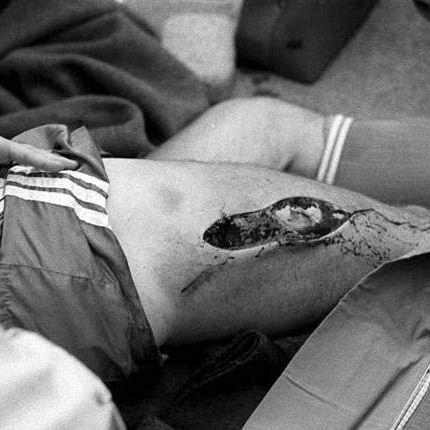 Im Video: Auuutsch! Die fiesesten Fußball-Verletzungen (Foto)