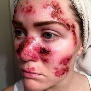 Junge Mutter schockt mit Hautkrebs-Selfie! (Foto)