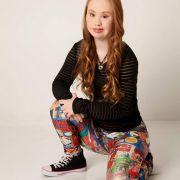 Dieses Mädchen zeigt: Auch Behinderte können schön sein (Foto)