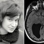 Diese Frau lebt mit einem Loch im Gehirn! (Foto)