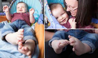 Jacob Duffy ist ein aufgewecktes Baby - doch der sieben Monate alte Junge wurde mit zwölf Fingern, zwölf Zehen und ernsthaften Augenerkrankungen geboren. (Foto)