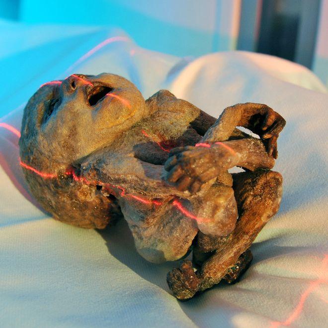 Frau lebt 50 Jahre mit mumifiziertem Fötus im Bauch (Foto)