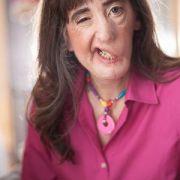 Frau mit halbem Gesicht verweigert jede Operation (Foto)