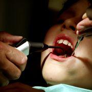 HIV-Angst nach Zahnarztbesuch (Foto)