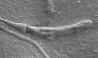 Die mikroskopische Aufnahme zeigt ein versteinertes Spermium. Das Fossil wurde im versteinerten Kokon eines Gürtelwurms in der Antarktis entdeckt. (Foto)