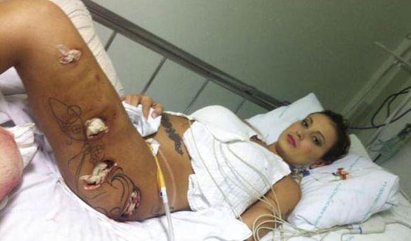 Geplatzte Implantate, Löcher im Körper