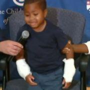 Erstmals zwei Hände erfolgreich transplantiert (Foto)