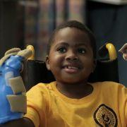 Achtjähriger bekommt in den USAneue Hände transplantiert (Foto)