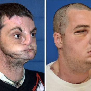 Von irren Transplantationen und künstlichen Organen (Foto)