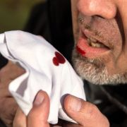 So vermeiden Sie die Ansteckung mit der Seuche (Foto)