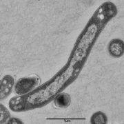 Der Tuberkulose-Erreger Mycobacterium tuberculosis, aufgenommen unter dem Elektronenmikroskop.