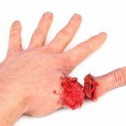 Mit einer Machete: Angreifer hackt Frau Daumen ab (Foto)