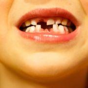 Experten: Schon in Schwangerschaft für gesunde Zähne sorgen (Foto)