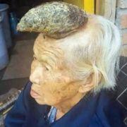 Chinesin (87) wächst ein Horn aus dem Kopf! (Foto)
