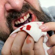 Mutter beißt Sex-Täter Teil der Zunge ab (Foto)
