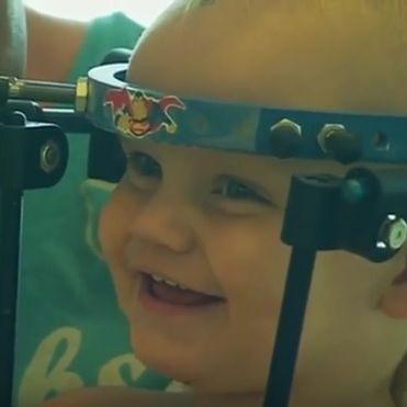 Mediziner operieren Babykopf wieder an (Foto)