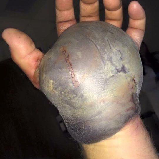 So sieht eine Hand nach einem Schlangenbiss aus (Foto)