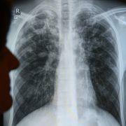 75 Mio. Tote in 35 Jahren! So gefährlich ist diese Krankheit (Foto)