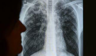 Die Infektionskrankheit Tuberkulose (TB) ist auch in Europa längst nicht ausgerottet. (Foto)