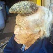 Dieser Chinesin wächst ein Horn aus dem Kopf.