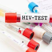 HIV-Neuinfektionen bei Heterosexuellen nehmen zu (Foto)