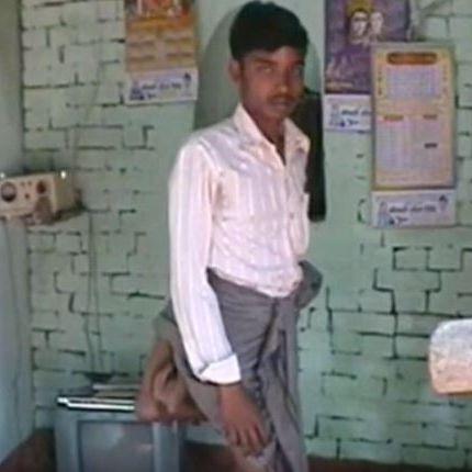 Als Teufel ausgegrenzt! Inder lebt mit vier Beinen (Foto)