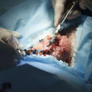 Dank Transplantation! US-Soldat erhält neuen Penis (Foto)