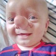 Ollie leidet unter einer seltenen Krankheit.
