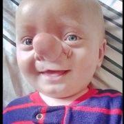 Ollie wächst das Gehirn aus der Nase (Foto)