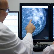 Jeder zweite Deutsche entwickelt Krebs-Tumore (Foto)