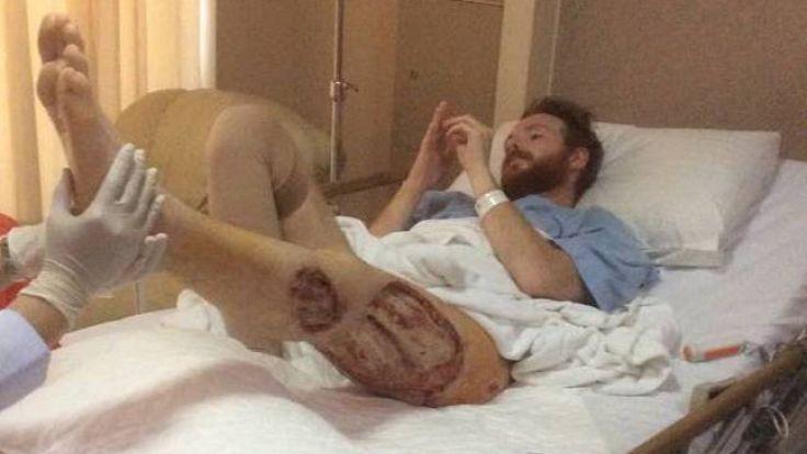 Das Bein von Ben Whiteside wurde von Bakterien zerfressen! (Foto)