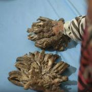 Der 25-Jährige aus dem Khuna-Distrikt im Süden des Landes leidet seit mehreren Jahren an den Auswüchsen.