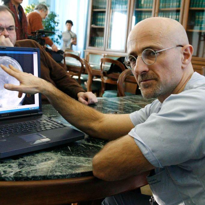 Arzt will Menschenkopf verpflanzen - DAS sind die Megakosten (Foto)